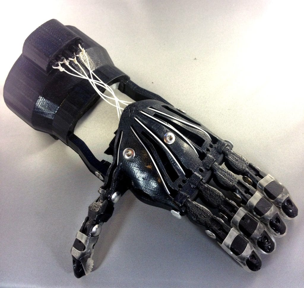 3D Printed Hand Prosthetic 2