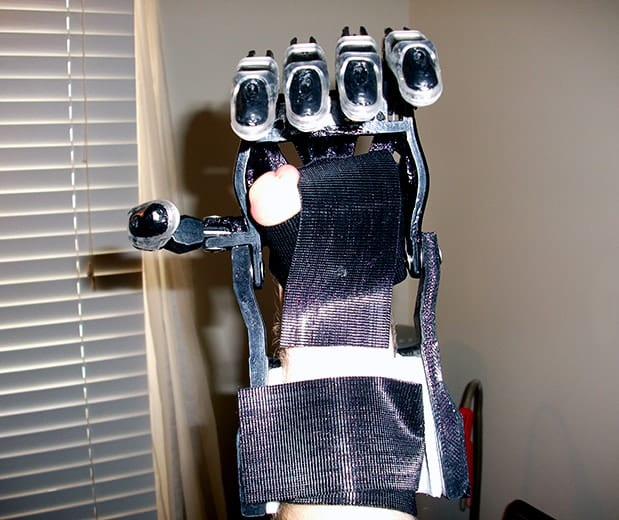 3D Printed Prosthetic Hand 2