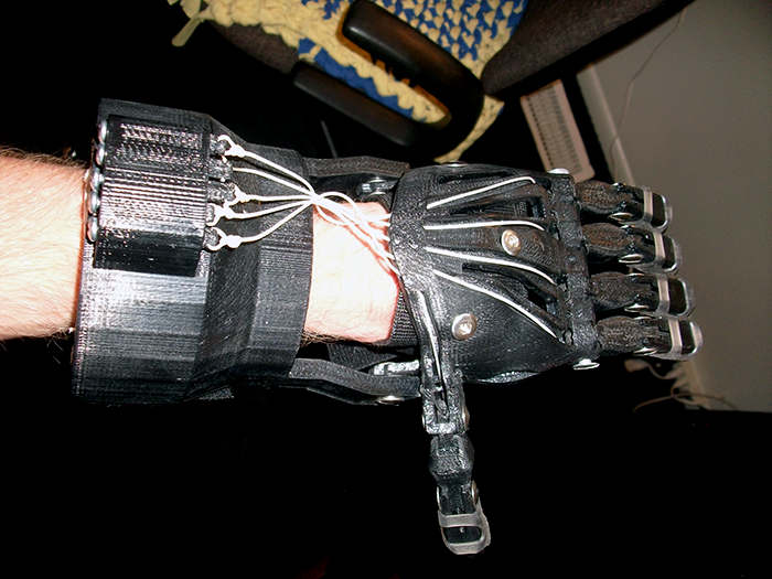 3D Printed Prosthetic Hand 3